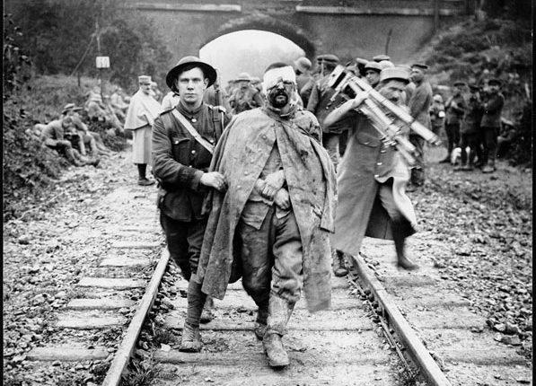photojurnalism worldwar 597x430 - تاریخچه ای از عکاسی خبری